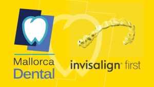 INVISALIGN FIRST - Máster Class de Invisalign - Clínica Mallorca Dental