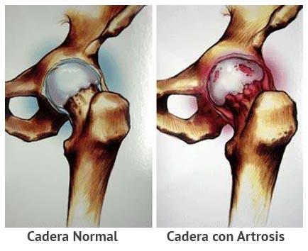 Artrosis de cadera - Clínica Martín Gómez Traumatólogos