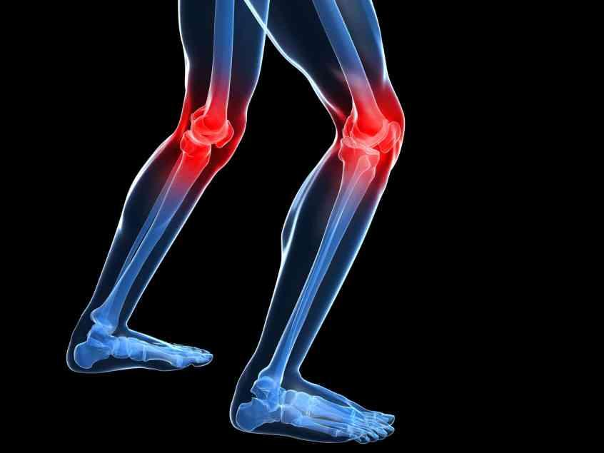 dolor en las rodillas