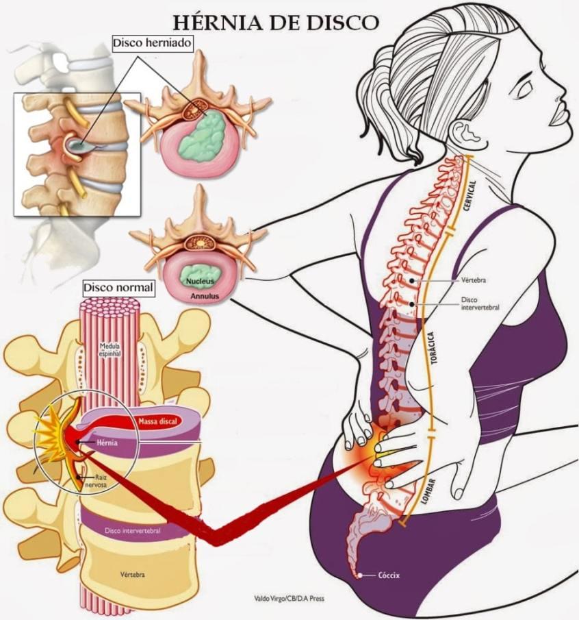 Qué es una hernia discal? - Clínica Martín Gómez