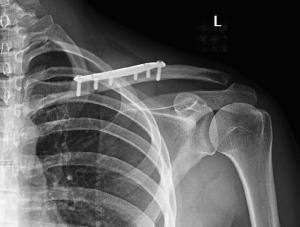 radiografía operación fractura de clavícula