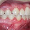 brackets-esteticos-convencionales-despues-01