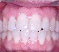 clinica-ortodoncia-valencia-soler-040