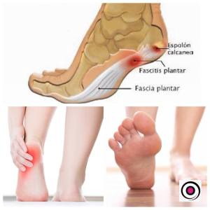 Clínica Physio Consulting: Fascitis Plantar