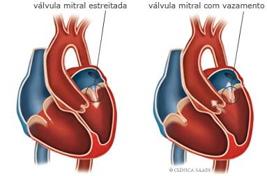 Válvulas cardíacas com funcionamento defeituoso. Valvulopatias