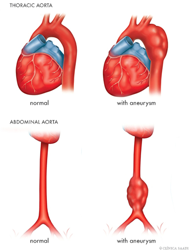 Aneurysms of thoracic and abdominal aorta.