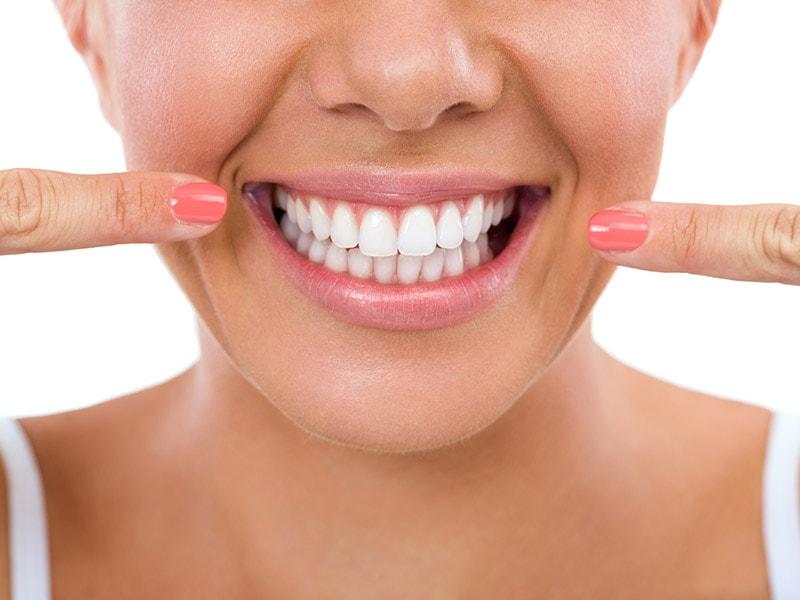Mantenimiento periodontal