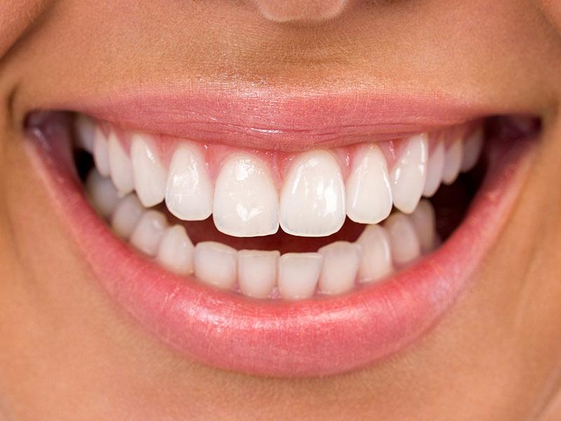 El esmalte dental