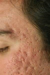 eliminacion de cicatrices atroficas 002