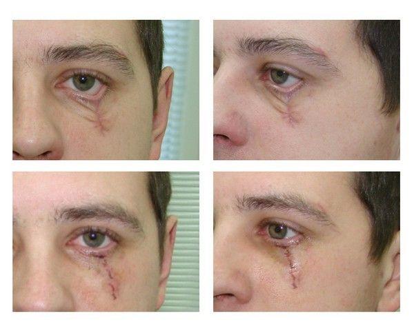 eliminacion de cicatrices complicaciones 013