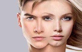 Feminización facial