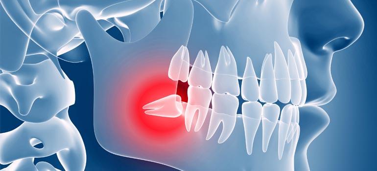 clinica-viana-novara_chirurgia-orale