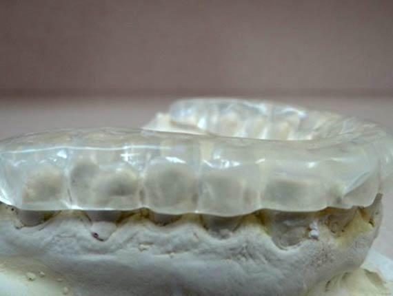 Clinique Cloutier denturologiste Montréal | Plaque occlusale