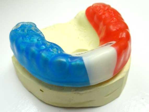 Clinique Cloutier denturologiste Montréal | Protecteur buccal