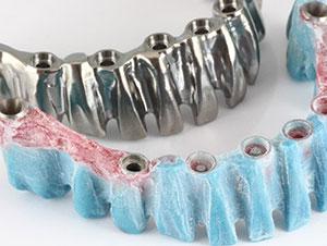 Clinique Cloutier denturologiste Montréal | Barre Paris et fixe