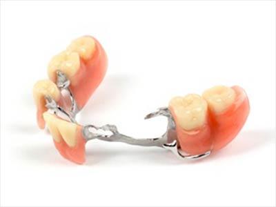 Clinique Cloutier denturologiste Montréal | Prothèse partielle amovible