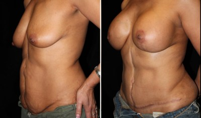Tummy Tuck / Abdominoplasty