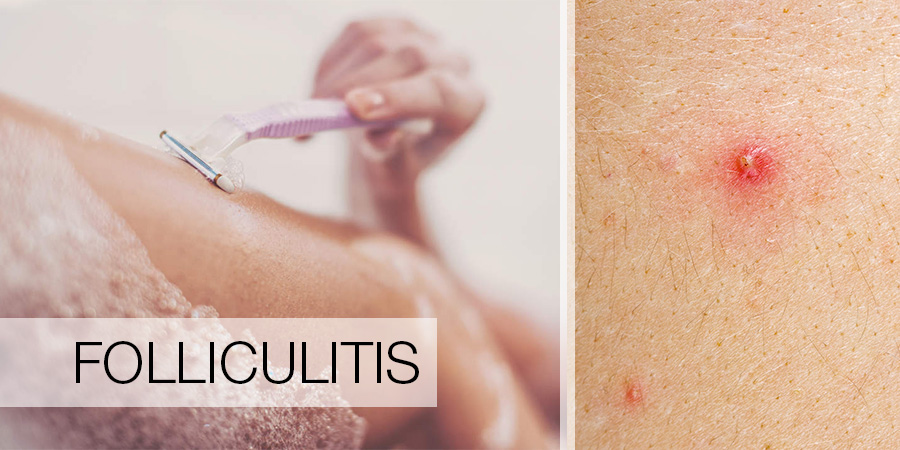 Folliculitis - Clinique Dallas Plastic Surgery