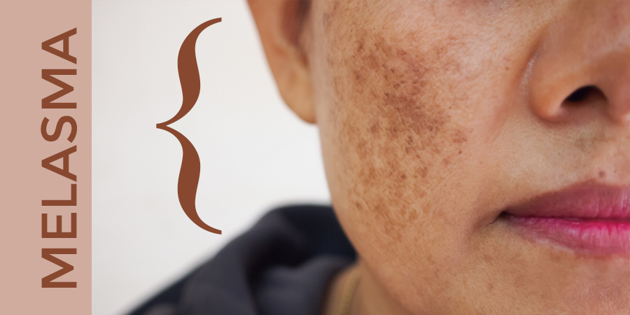 Melasma – What you need to know.