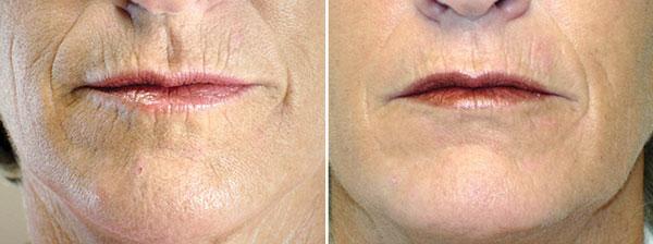 SkinTyte Skin Firming Laser - Clinique Dallas Plastic Surgery, Medspa & Laser Center
