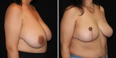 Breast Reduction - Reduccion de Senos | Clinique Dallas Plastic Surgery