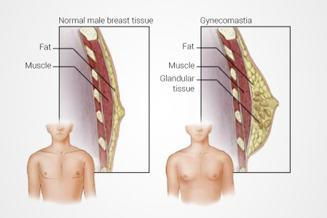 Gynecomastia / Ginecomastia | Plastic Surgery Clinique Dallas