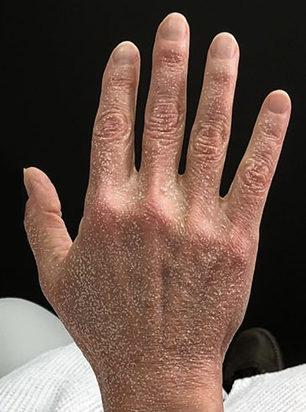Halo for hands - After Treatment - Clinique Dallas Plastic Surgery