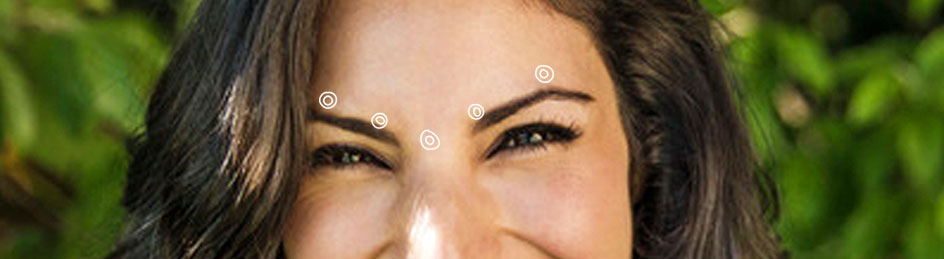 Dallas Dysport - Injection points - Clinique Dallas Plastic Surgery, Medspa and Laser Center