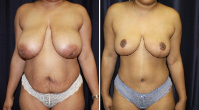 Mommy Make Over - Tummy Tuck - Abdominoplasty / Abdominoplastia | Clinique Dallas Plastic Surgery