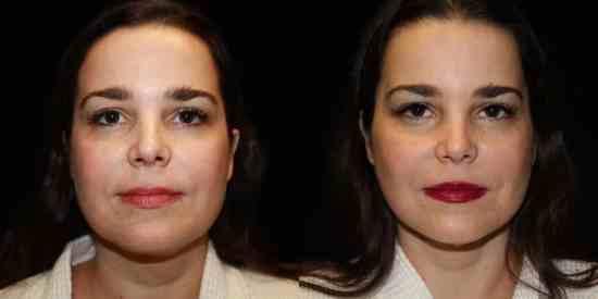Dallas Neck Lift / Cervicoplastía - Plastic Surgery, Medspa and Laser Center | Clinique Dallas