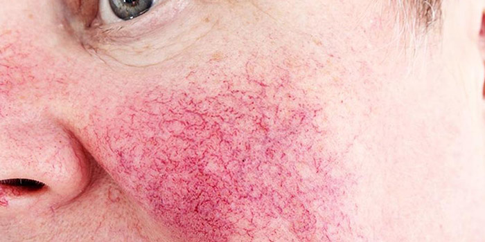 Rosacea - Clinique Dallas Plastic Surgery