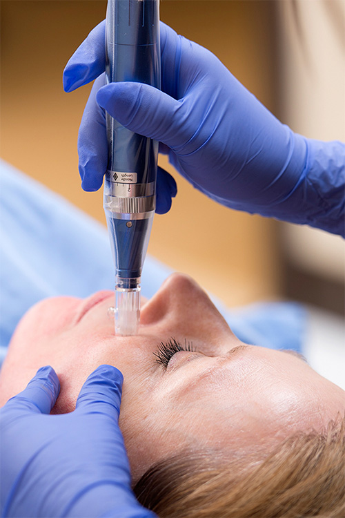 Dallas SkinPen Procedure - Clinique Dallas Medspa and Laser Center