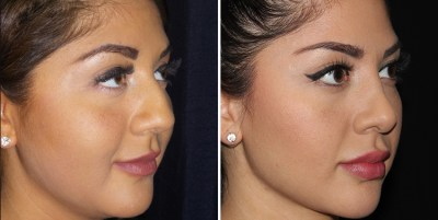 Rhinoplasty - Rinoplastia / Clinique Dallas Plastic Surgery