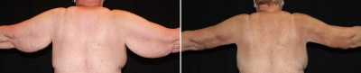 Dallas Arm Lift / Brachioplasty - Braquioplastia - Plastic Surgery | Clinique Dallas