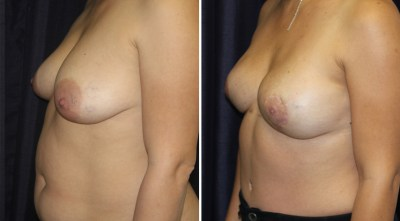 Oncoplastic Surgery - Breast Reconstruction | Plastic Surgery Clinique Dallas