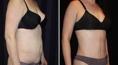 Tummy Tuck - Abdominoplasty / Abdominoplastia | Clinique Dallas Plastic Surgery