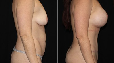 Tummy Tuck - Abdominoplasty / Abdominoplastia | Clinique Dallas Plastic Surgery