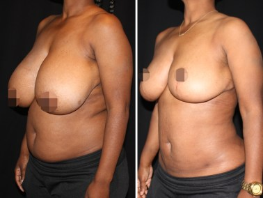 Breast Reduction & Liposuction