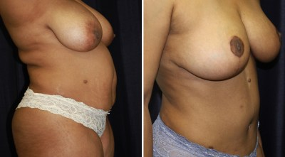 Tummy Tuck / Abdominoplasty - Plastic Surgery Medspa and Laser Center Clinique Dallas