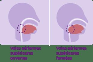 sleep-apnee-diagram_v2