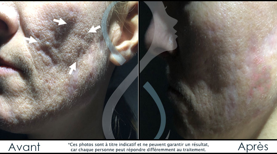 cicatrices-acne