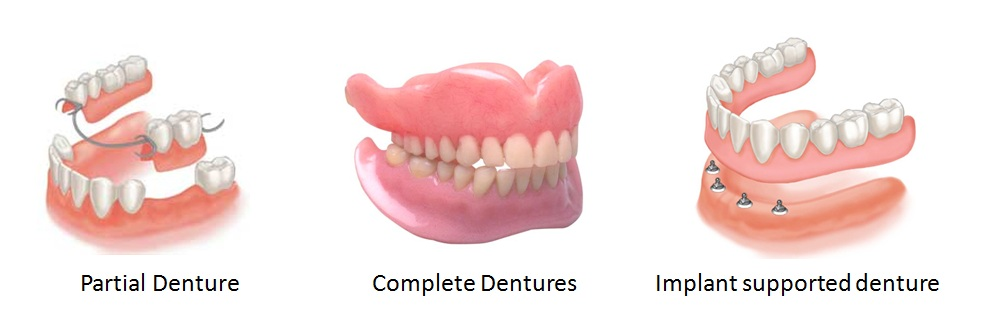 Image result for types of dentures