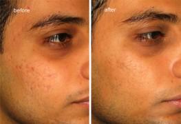 dermaroller_acne