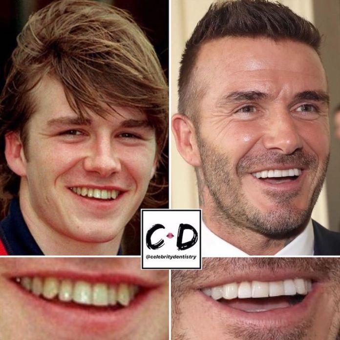 cliomakeup-denti-star-teamclio-3