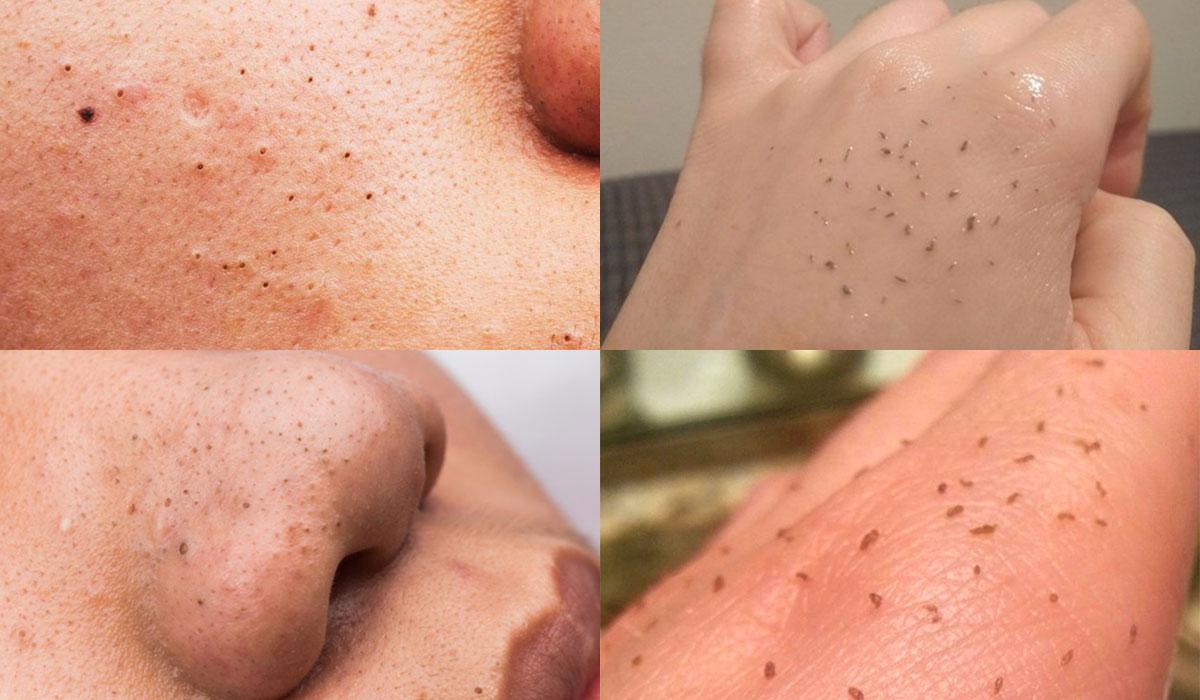 Lo Skin Gritting Elimina I Punti Neri Lo Abbiamo Provato
