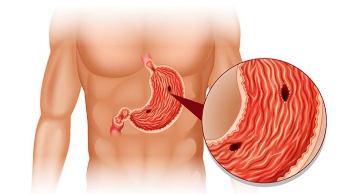 ClioMakeUp-rimedi-naturali-mal-di-stomaco-4-ulcera.jpg