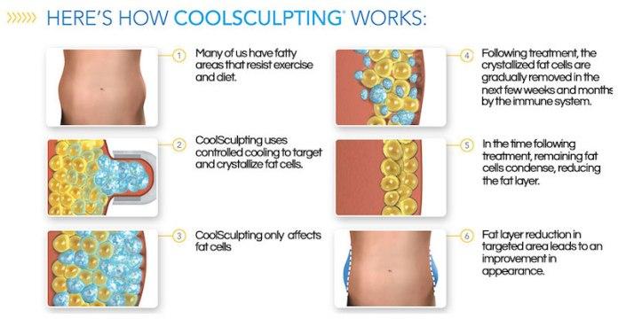 cliomakeup-coolsculpting-4-procedimento