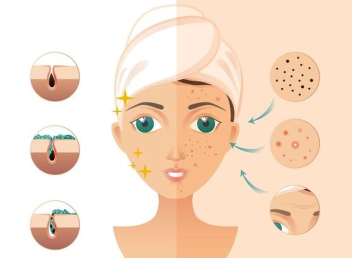 cliomakeup-sapone-acne-8-viso