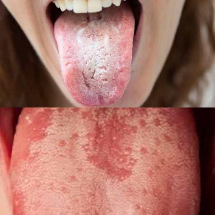 cliomakeup-candida-vaginale-18-lingua