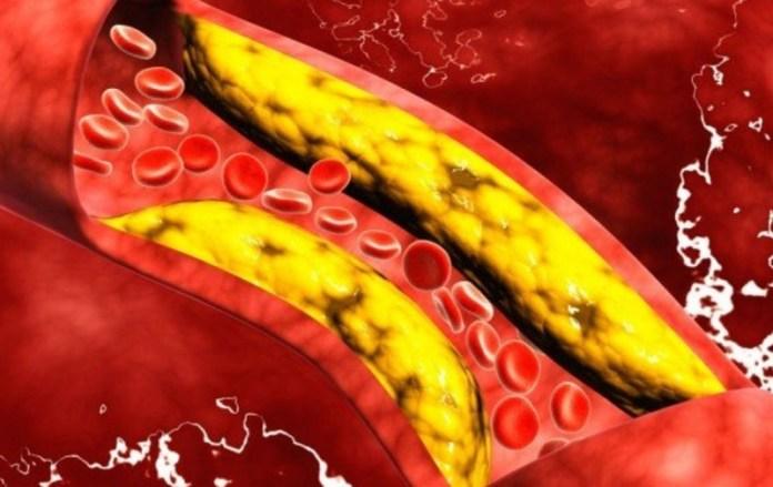 cliomakeup-quanto-olio-al-giorno-7-colesterolo
